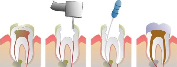 Jme Dental   Root Canal Treatment Treatments